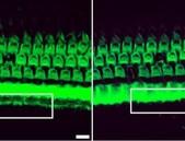 Nová naděje pro léčbu geneticky podmíněné hluchoty
